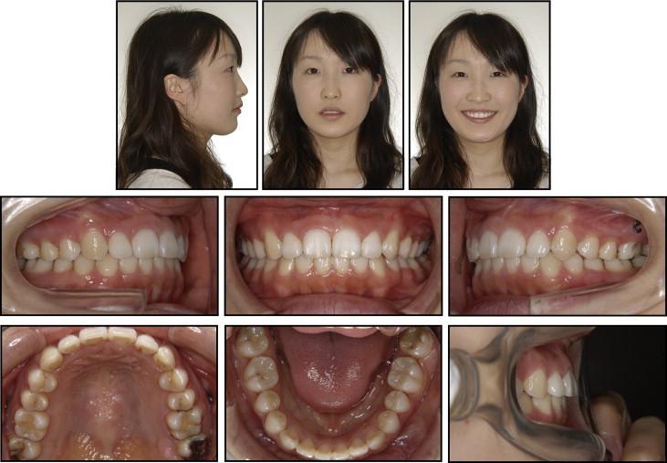 Can a dentist prescribe propecia